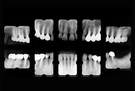 10枚(または14枚)法 X線規格写真
