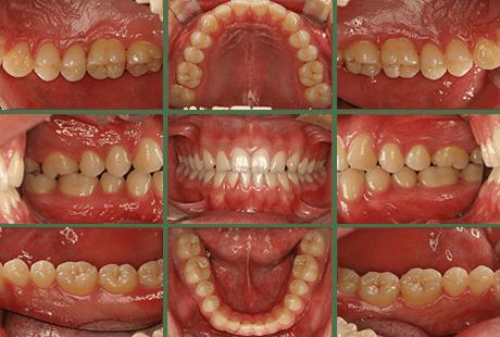 口腔内規格写真撮影