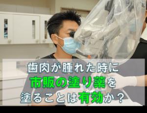 歯科 群馬 前橋 高崎 伊勢崎 桐生 太田 歯肉 腫れた 歯周病 定期検診 歯周内科