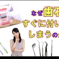 歯科 群馬 前橋 高崎 伊勢崎 桐生 太田 歯石 定期検診 歯周病 歯周病 歯科クリーニング 予防歯科