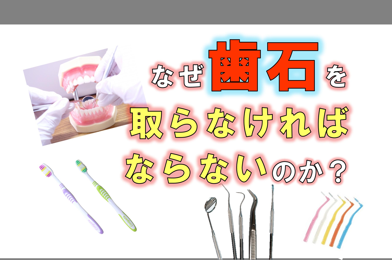歯科 群馬 前橋 高崎 伊勢崎 桐生 太田 予防歯科 歯石 歯周病 歯磨き
