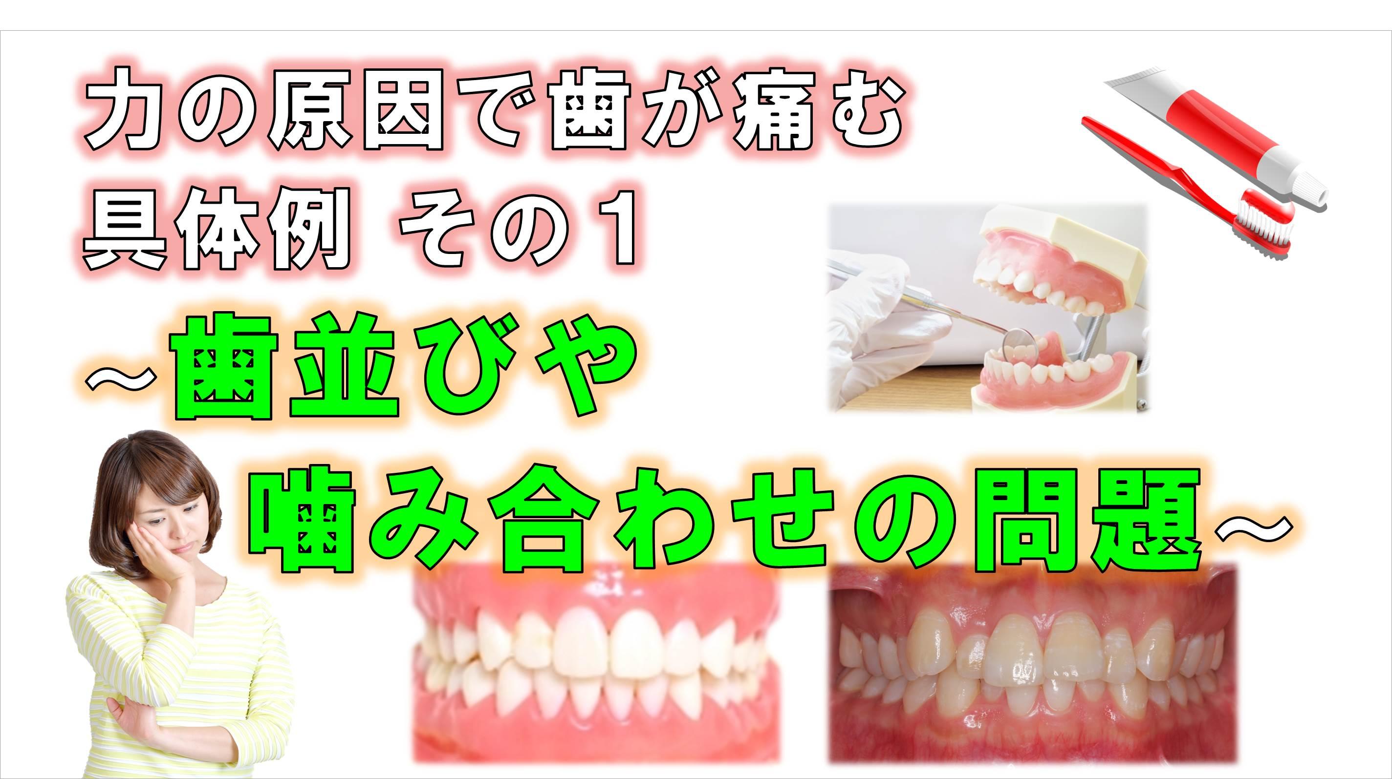 歯科 群馬 前橋 高崎 伊勢崎 桐生 太田 歯が痛い 矯正歯科