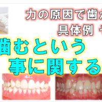 歯科 群馬 前橋 高崎 伊勢崎 桐生 太田 痛い くいしばり 噛み合わせ 歯ぎしり