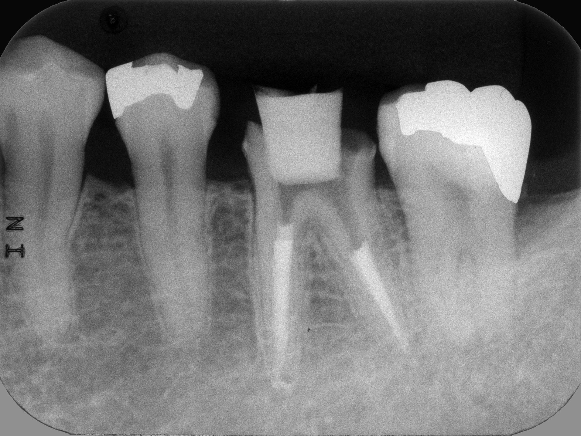 群馬,前橋,高崎,根管治療,歯根治療,マイクロスコープ,ラバーダム