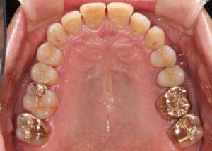 万代総合歯科診療所 群馬 歯科 歯周病 根管治療 インプラント治療 8020
